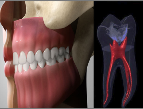 Patient education through 3D animation and 3D visualization